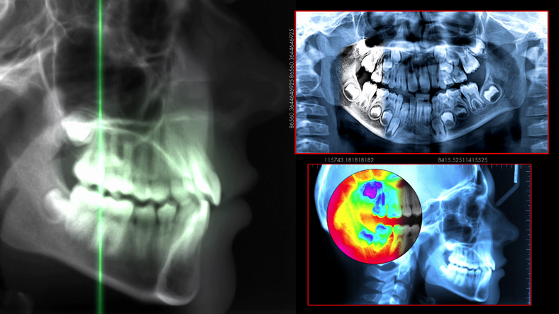 X-rays are used in conjuction with several of our services at Coulter Family Dentistry in Spokane Valley, WA