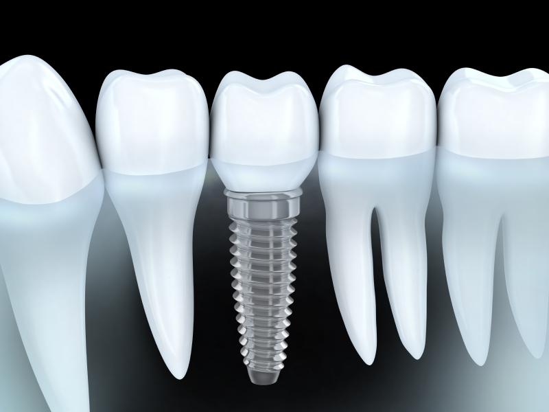 Dental Implants in Spokane Valley, WA