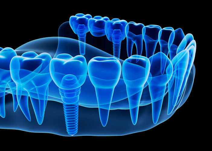 Image representing the Benefits of Dental Implants in SPOKANE VALLEY, WA.